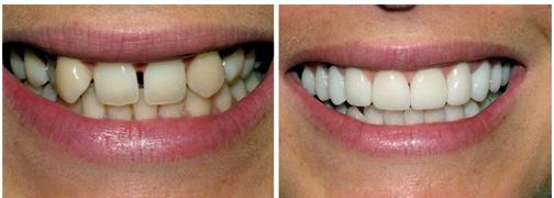 виниры для зубов perfect smile veneers инструкция
